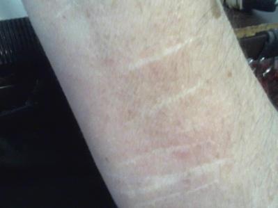 scars on wrists